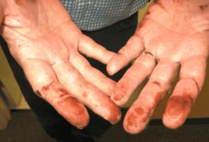 Чем можно эффективно отмыть марганцовку с рук