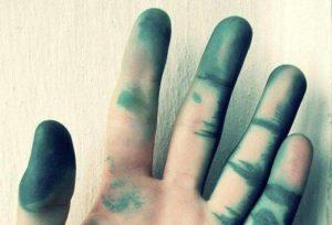 Чем можно отмыть зеленку с кожи
