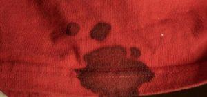 Как отстирать старые пятна крови с одежды
